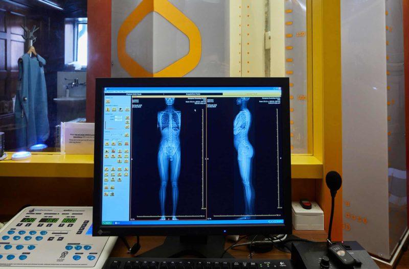 EOS scan London - What is an EOS scan - Echelon Health