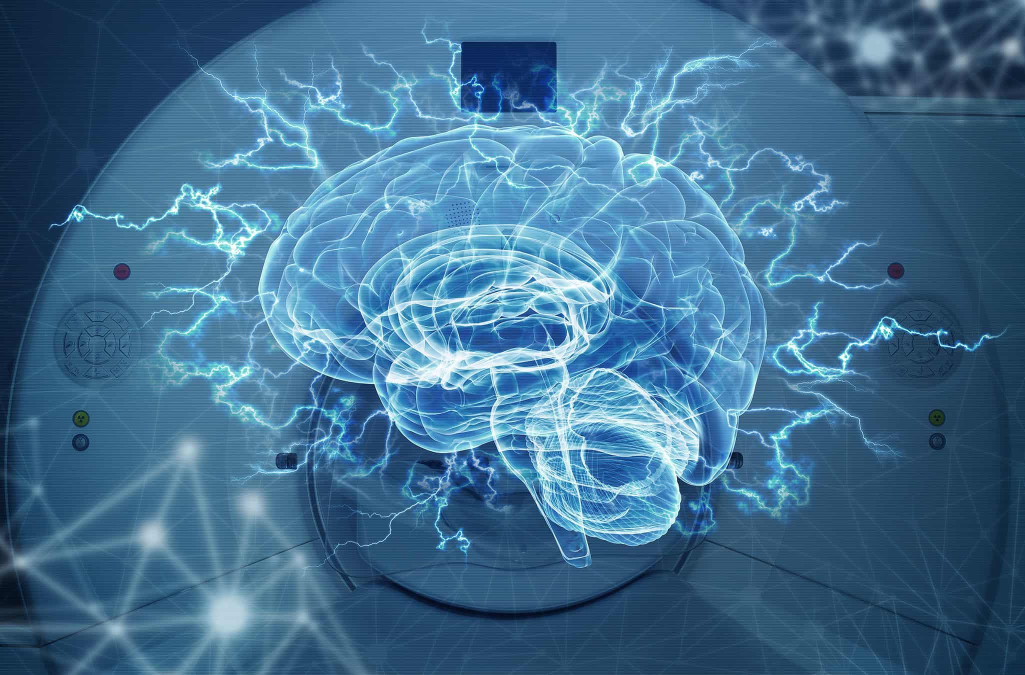 Echelon Health - dramatic picture of the brain