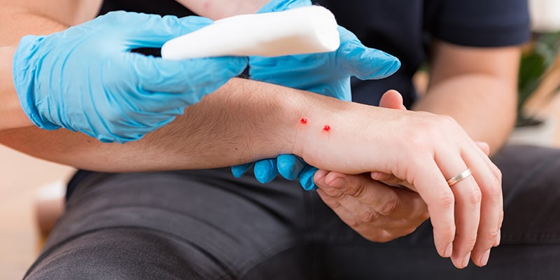 Echelon Health Journal Blog How to live to a ripe old age - First Aid on Snake Bite