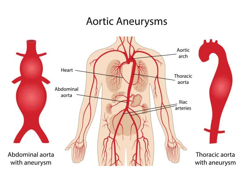 Echelon Health - Aortic Aneurysm