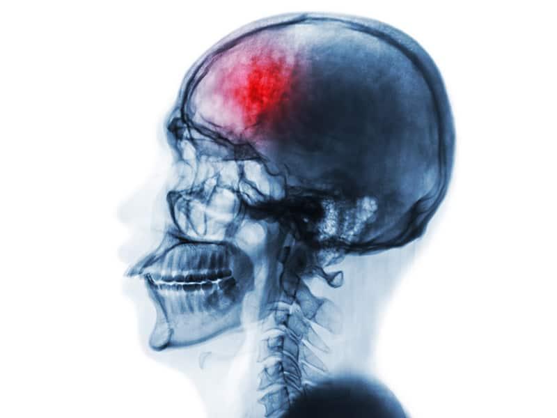 Echelon Health - Cerebrovascular disease