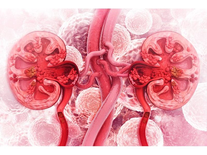Echelon Health - Kidney Disease