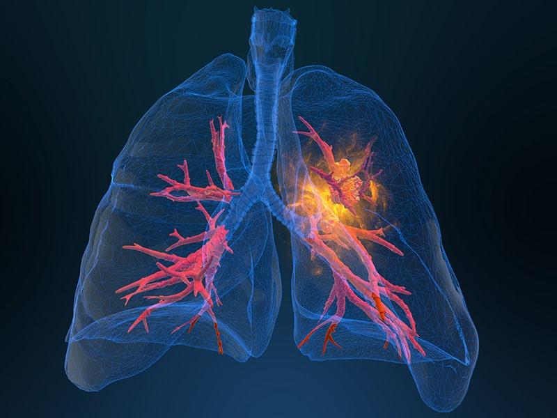 Echelon Health - Lung Cancer