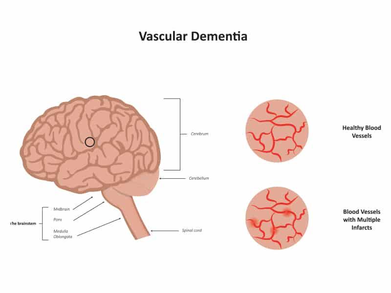 Echelon Health - Vascular Dementia