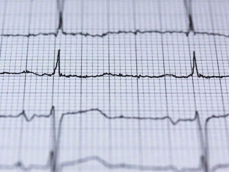 ECG heart - health check up London - Echelon Health