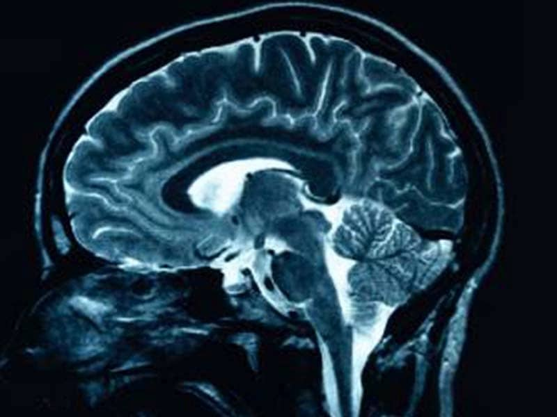 Brain MRI Scan - Echelon Health Blog