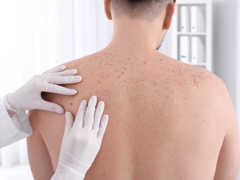 skin cancer screening London - corporate health assessment Echelon Health