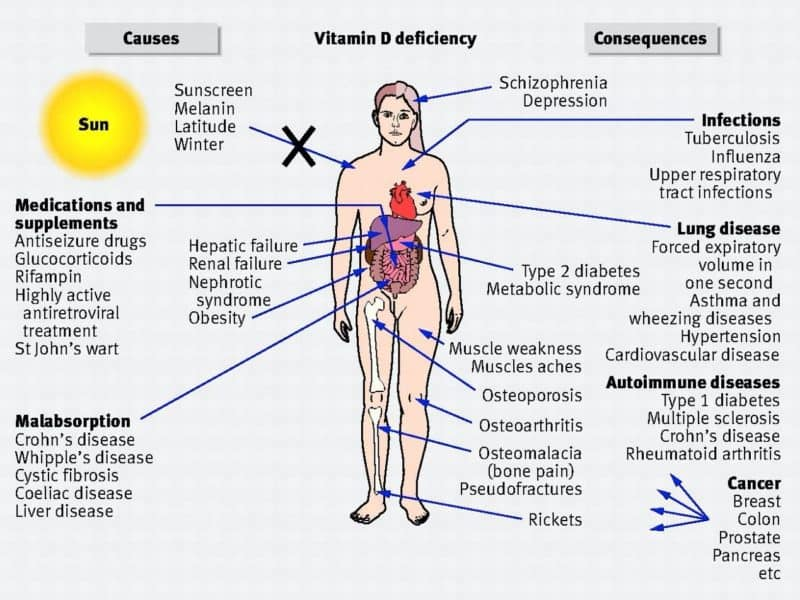 vitamin D deficiency impacts on health - Echelon Health