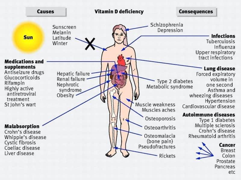 vitamin D deficiency impacts on health - Echelon Health