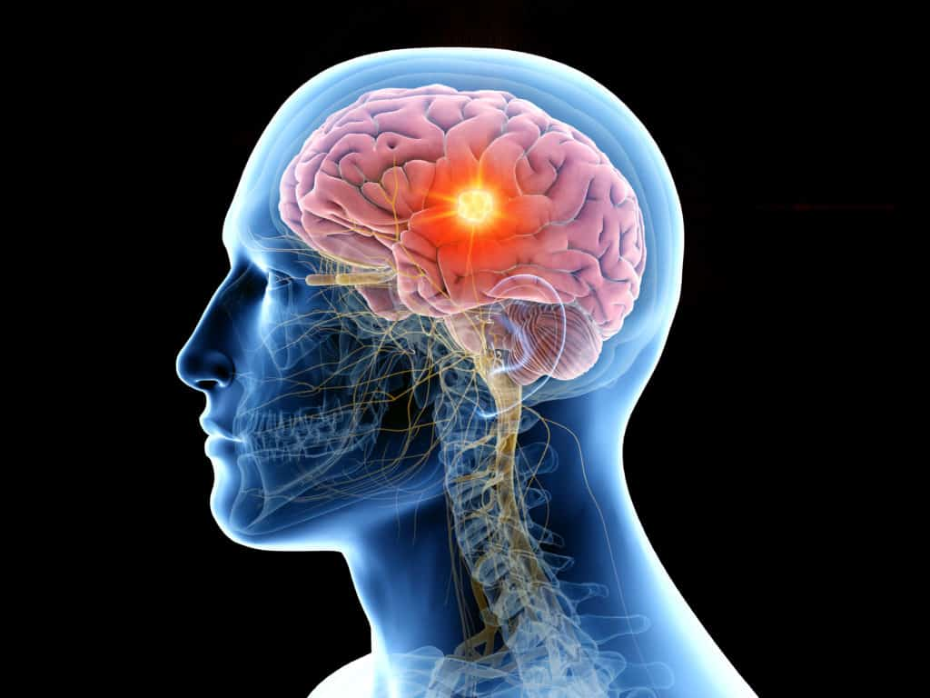 brain tumour diagnosis and symptoms - Echelon Health