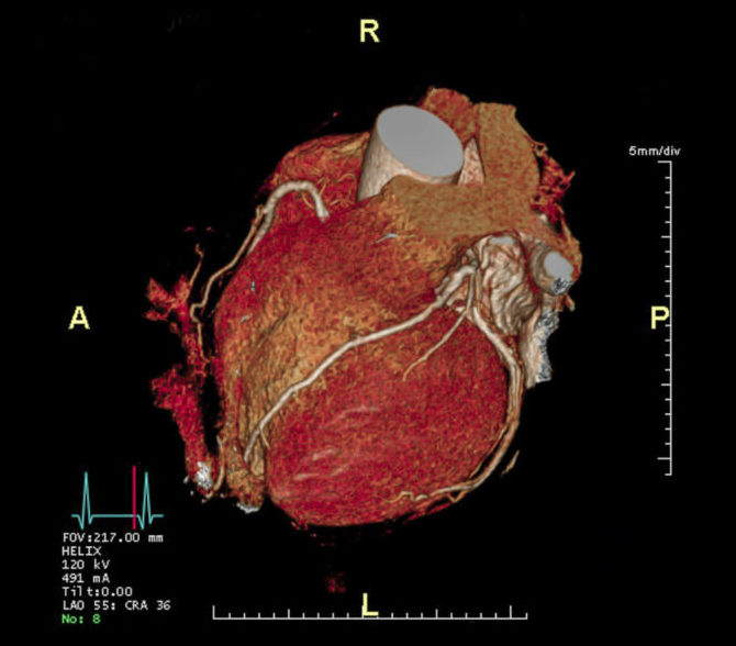 what is atherosclerosis - heart screening in London -Echelon Health