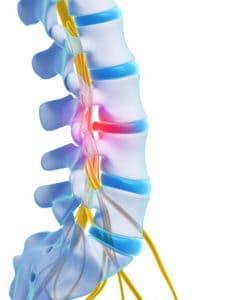 herniated disc - What causes sciatica? Sciatica diagnosis in London - Echelon Health