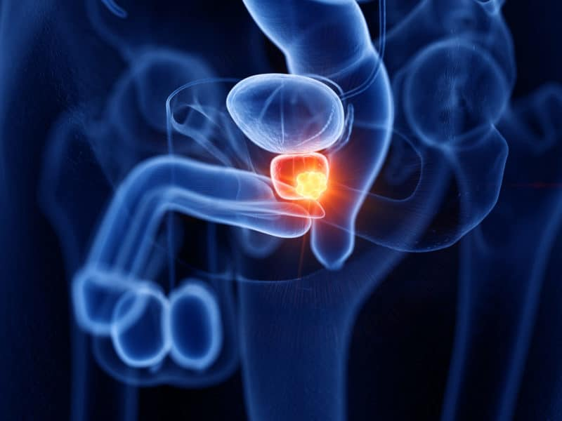 prostate cancer test in London - Echelon Health