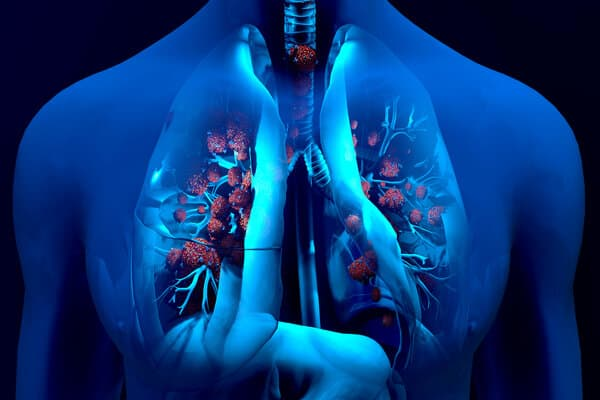 Droplets infected with a virus spray into the air, Human lungs infected by the Coronavirus or by virus, Respiratory infection caused by a virus - SARS